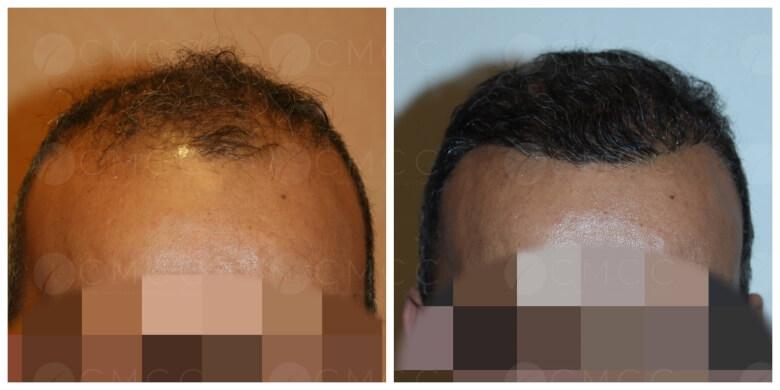 Résultat avant-après d'une greffe de cheveux FUE sur un patient souffrant d'alopécie androgénétique
