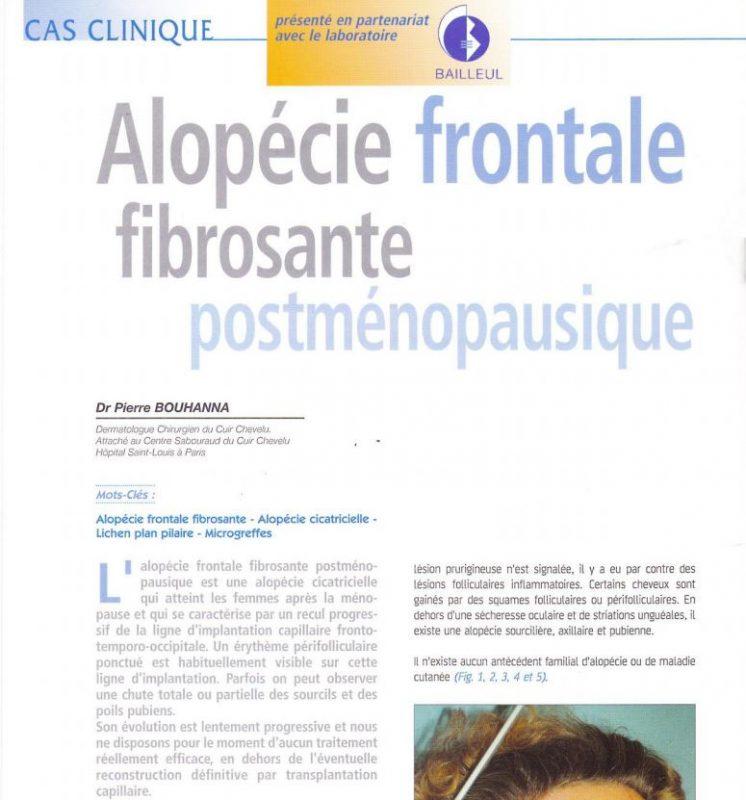 Article scientifique sur l'alopécie frontale fibrosante post-ménopausique