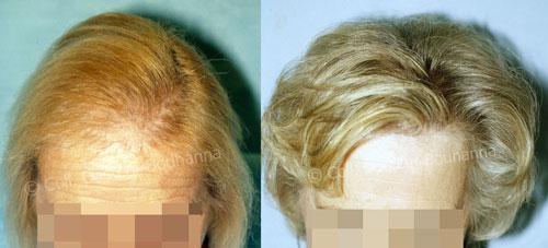 L'alopécie de la femme ménopausée sera traitée par des greffes capillaires pour retrouver définitivement sa chevelure grâce au Dr Bouhanna