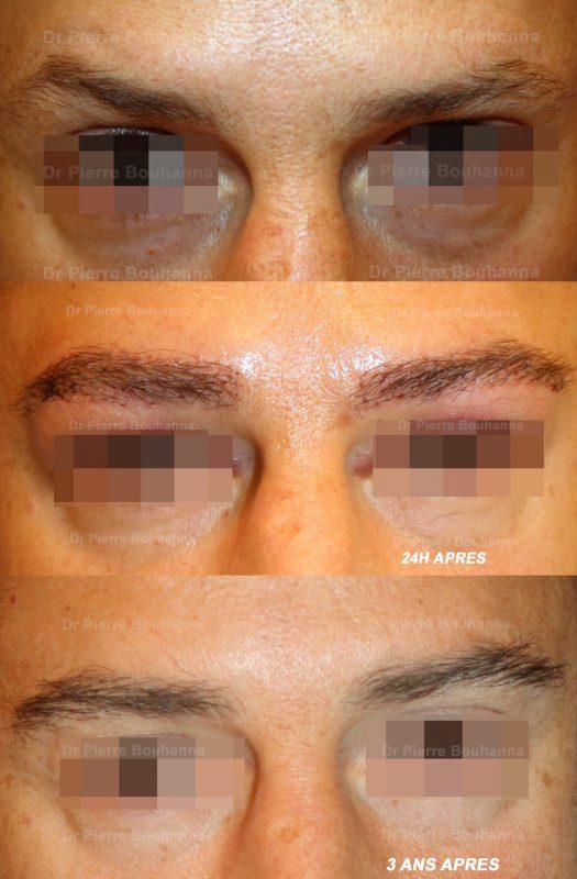 Résultat d'une greffe de sourcils