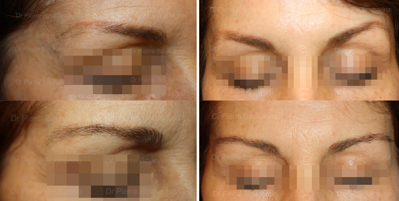 Résultat d'une greffe de sourcils chez une patiente