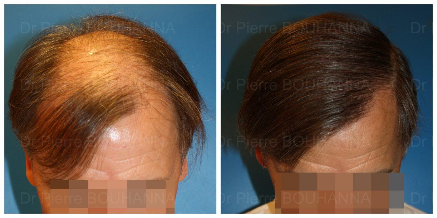 Résultat d'une greffe de cheveux FUT à cheveux longs sur un patient