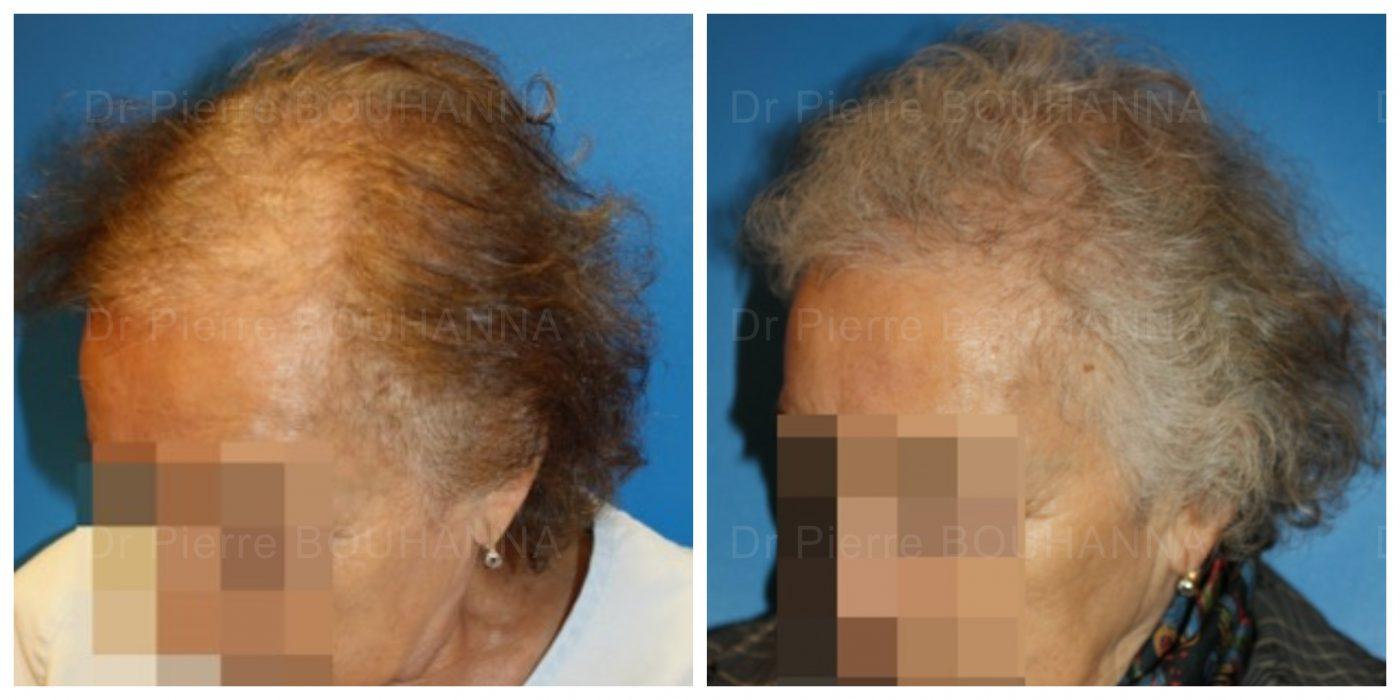 Résultat d'une greffe de cheveux FUT à cheveux longs sur une patiente