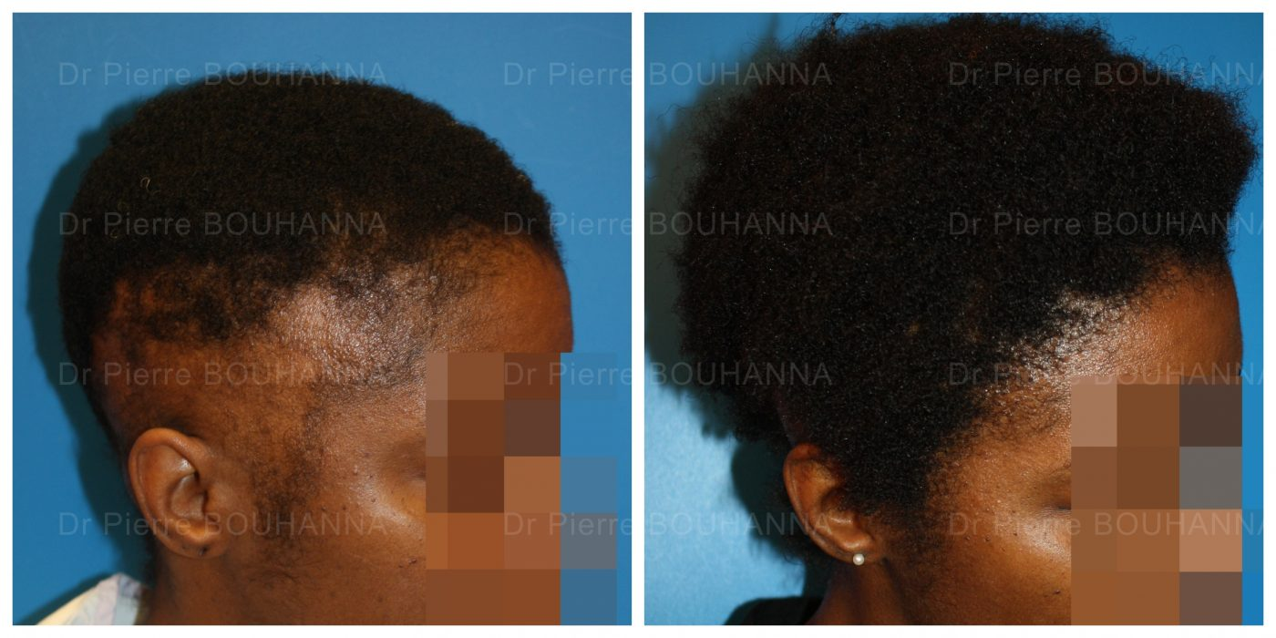 Résultat d'une greffe de cheveux FUT à cheveux longs sur une patiente aux cheveux afro