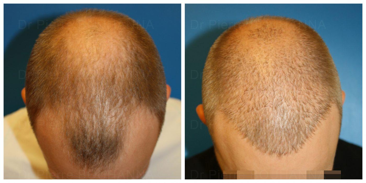 Cas d'un patient avant et après Fue par le docteur Pierre Bouhanna