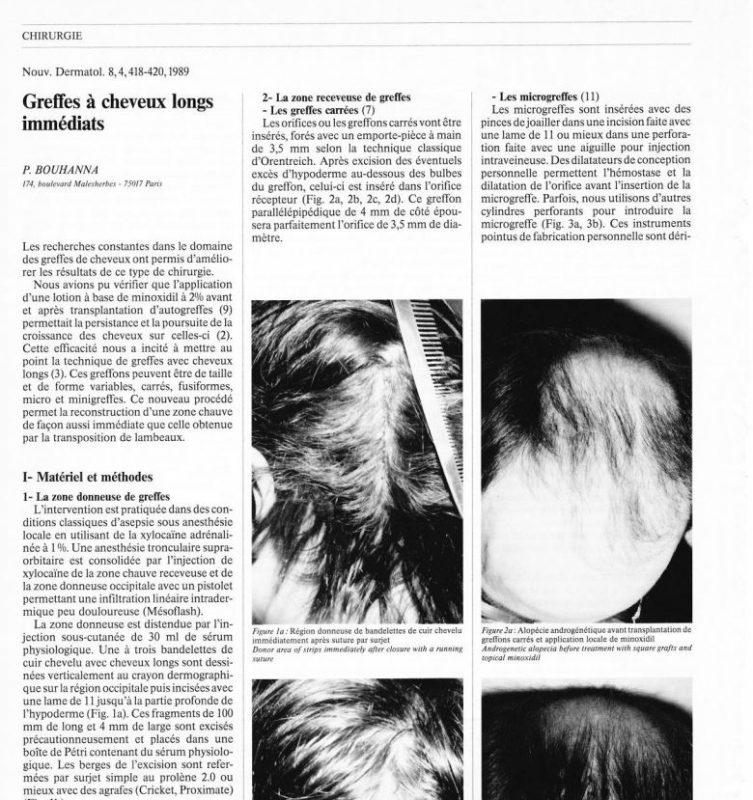 Article scientifique sur les greffes à cheveux longs immédiats par le Docteur Pierre Bouhanna