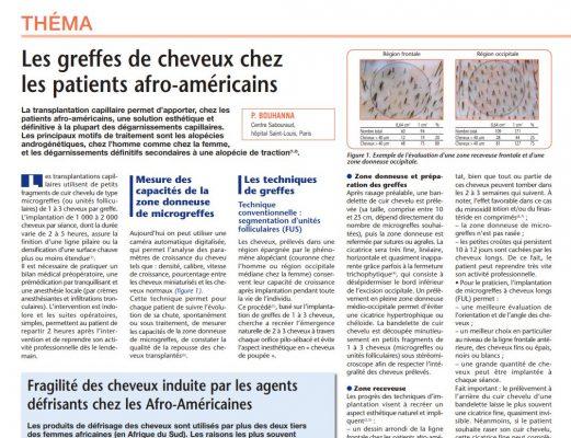 Article scientifique sur les greffes de cheveux chez les patients afro-américains
