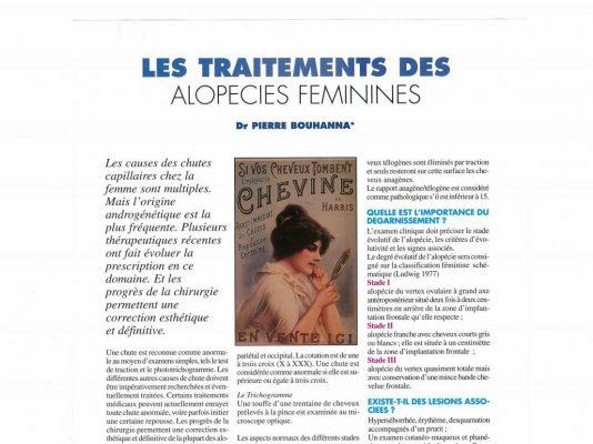 Article sur les traitements des alopécies féminines par le Docteur Pierre Bouhanna