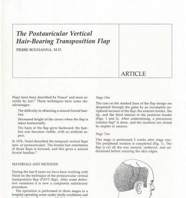 Article scientifique sur les lambeaux de cuir chevelu à charnière haute