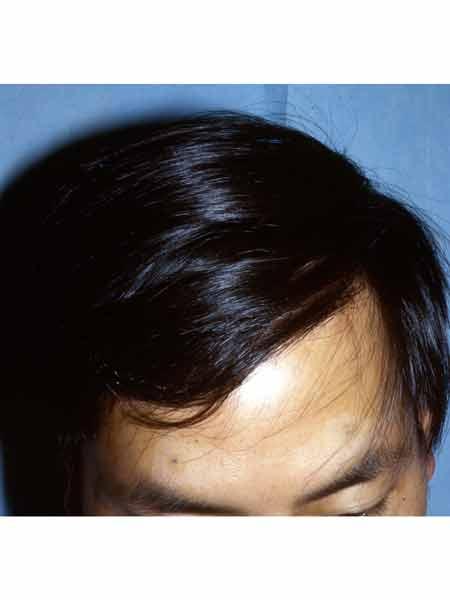 alopécie androgénétique chez un patient asiatique au niveau des golfes après traitement de greffe de cheveux par le dr bouhanna