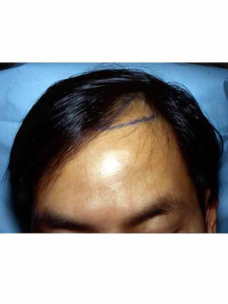 Dégarnissement des golfes chez un patient d'origine asiatique et soufrant d'alopécie androgénétique