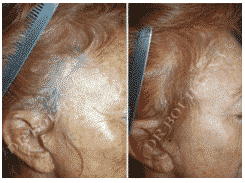 LES ALOPÉCIES ET CICATRICES APRÈS LIFTINGS CERVICO-FACIAUX ayant besoin de greffe capillaire par le Dr Bouhanna