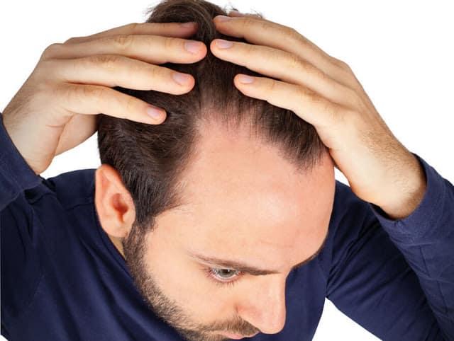 L'alopécie ou perte de cheveux chez l'homme peut être corrigé par une greffe ou des implants capillaires, spécialités du Docteur Bouhanna
