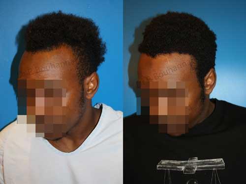 Nouvel Greffe de cheveux chez les patients Afro-Américains LO-23
