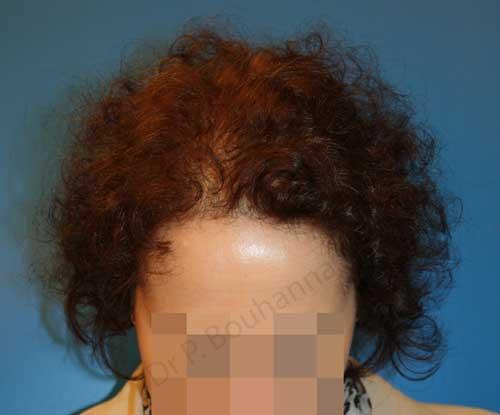 Résultat après 1 séance FUL pour une alopécie de stade 3 chez une femme ayant eu recours à des implants capillaires par le Docteur Pierre Bouhanna