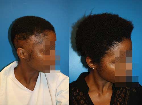 Résultat avant après d'une alopécie de tractions définitives chez une femme afro-américaine nécessitant une transplantation capillaire par le Dr Bouhanna