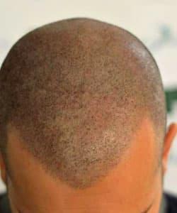 Crâne homme après dermopigmentation capillaire cachant la calvitie par le Dr Bouhanna