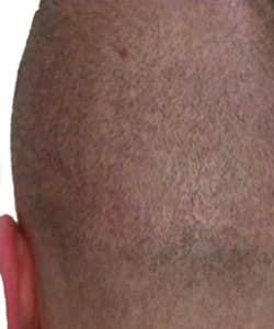 Cuir chevelu avec cicatrice invisible après dermopigmentation capillaire réalisée par le Docteur Bouhanna