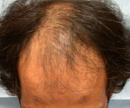 FUL avant 2 séances d'implants capillaires par le Docteur Pierre Bouhanna
