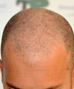 Crâne homme avant dermopigmentation capillaire utilisée également en inter-greffe par le Dr Bouhanna