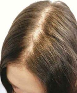Dégarnissement des cheveux avant dermopigmentation capillaire, tatouage ou trichopigmentation par le Docteur Pierre Bouhanna