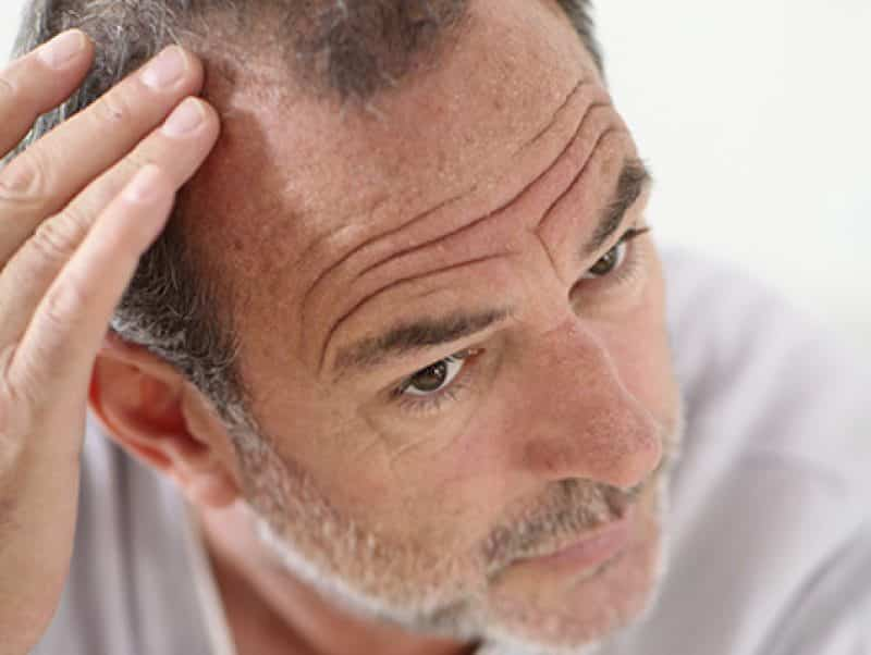 Calvitie ou alopécie chez l'homme nécessitant une greffe capillaire par un spécialiste des implants comme le docteur Bouhanna