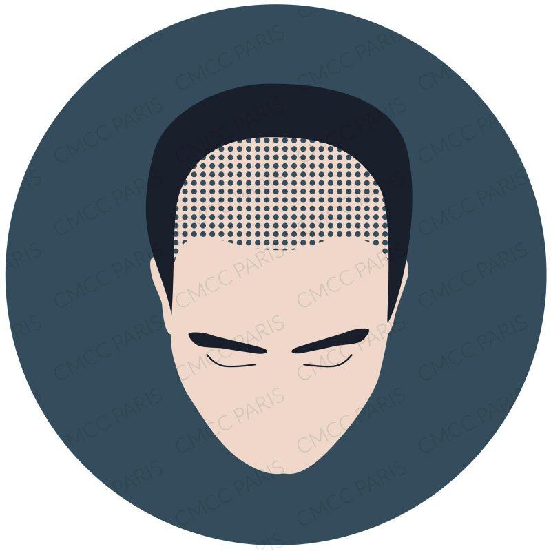 Diagnostic greffe de cheveux gratuit en ligne