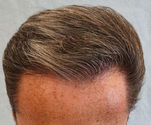 Résultat après la séance FUL de greffe capillaire par le Docteur Pierre Bouhanna