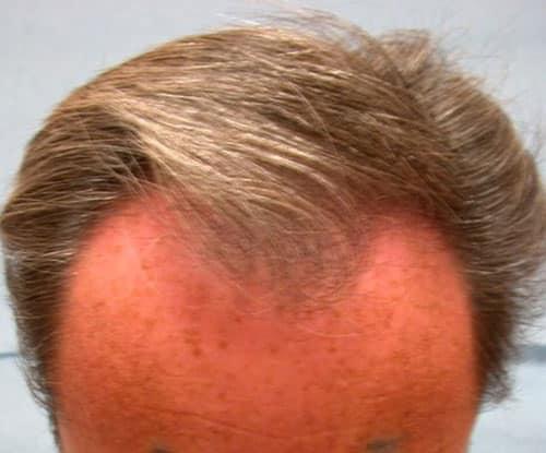 Avant la séance FUL de greffe capillaire par le Docteur Pierre Bouhanna