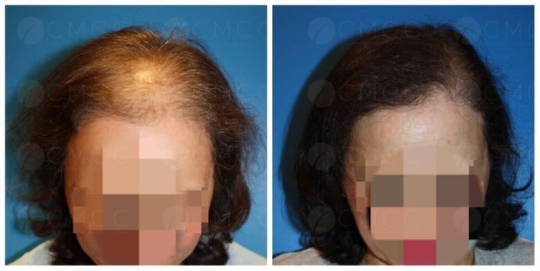 Résultats avant/après chez une patiente ayant subi une greffe FUT à cheveux longs