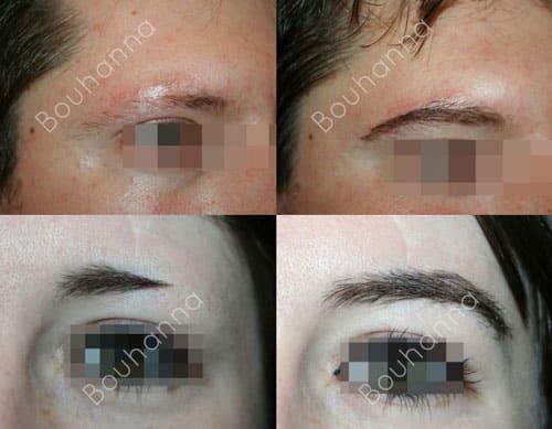 Greffe de sourcils par extractions folliculaires et implants ful ou fue par le Docteur Pierre Bouhanna