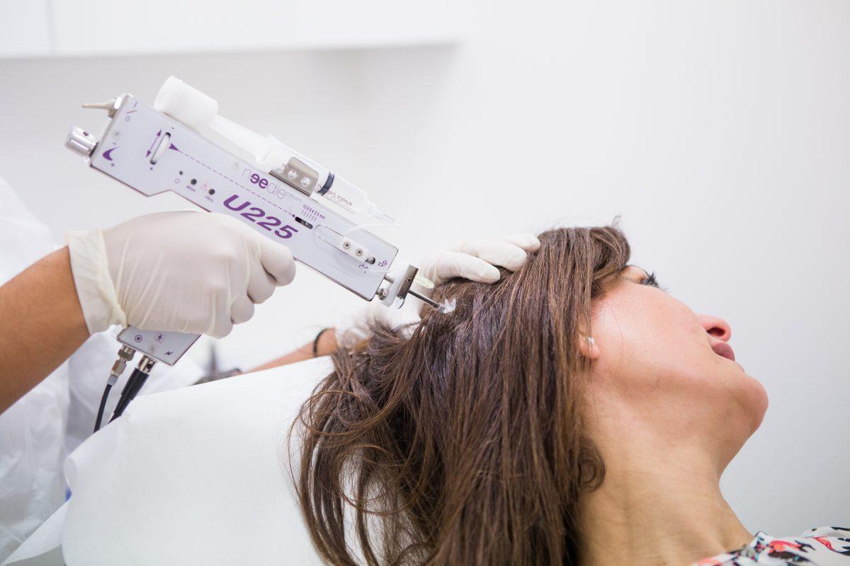 La mésothérapie capillaire permet de lutter contre la chute de cheveux et la calvitie masculine et féminine par micro-injections de polyvitamines dans le derme du cuir chevelu