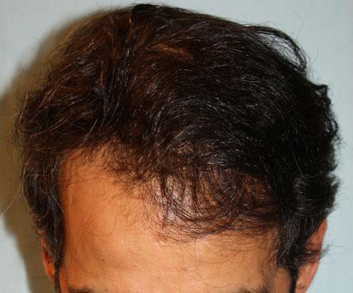 Résultat après 2 séances FUL d'implants capillaire par le Docteur Pierre Bouhanna