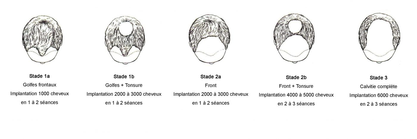 Les différents types d'alopécie masculine nécessitant une greffe de cheveux par le Docteur Pierre Bouhanna