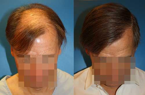 Transplantation d'unités folliculaires ou FUL est une technique de greffe utilisées par le Dr Bouhanna